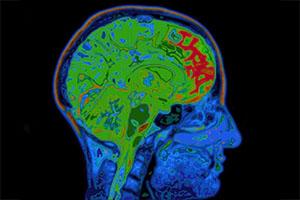 Five-Minute Test Can Detect Dementia 10 Years Early