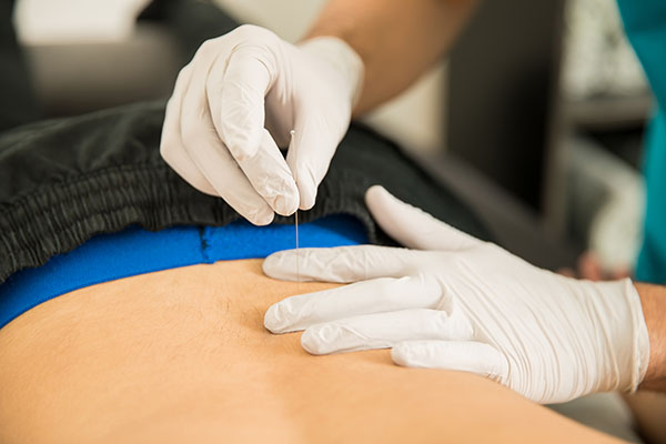 Who Can Perform Dry Needling?